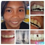 Initial ABSCBN – D4EVF Joint Dental Mission – Post Project Report